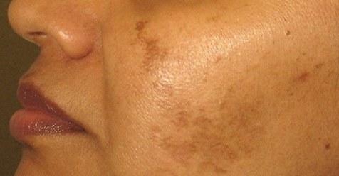 Натуральное средство 100% избавляющее от чёрных пятен на лице