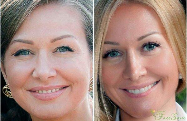 На фото: Елена Каркукли до начала и после занятий фейсфитнесом