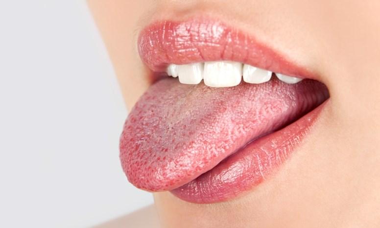 О каких болезнях говорит белый налет на языке?