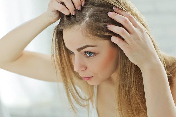 Узнайте, есть ли у вас ген выпадения волос