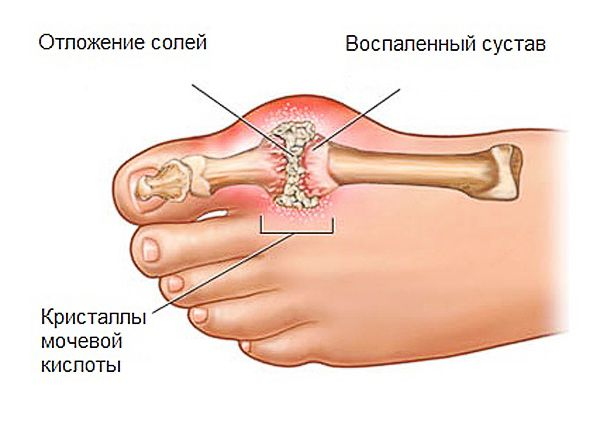 симптомы избытка мочевой кислоты