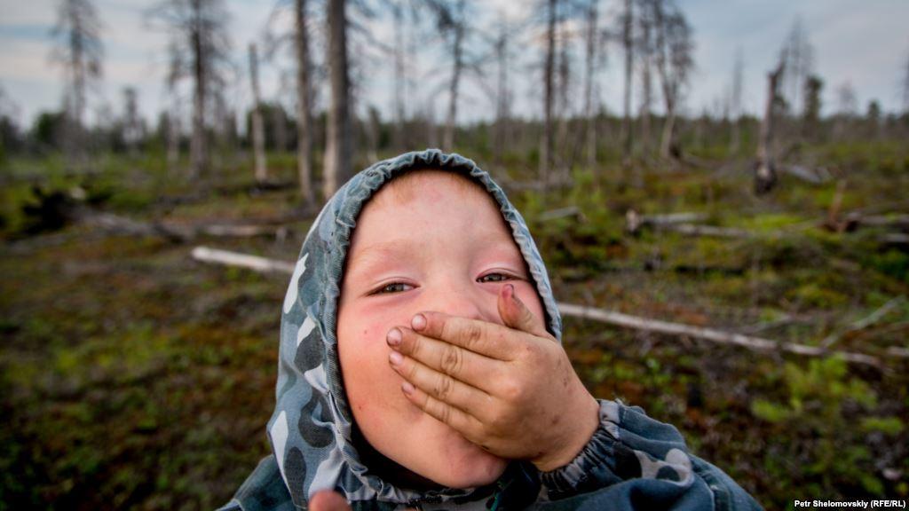 Горячая язва Сибири