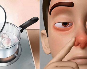 6 эффективных средств от заложенности носа, воспаления и болей