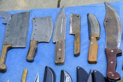 У жителя Индии из желудка вынули 40 ножей