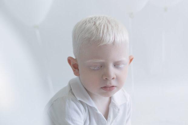 albinos_5