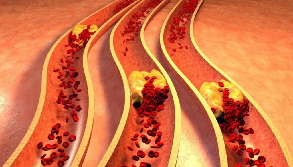 4 скрытых признака закупоренных артерий (и лучшие продукты, чтобы предотвратить это)