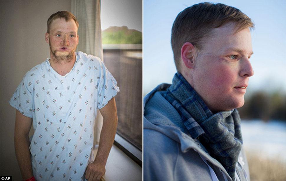 Неудавшемуся самоубийце пересадили лицо, и у него началась новая жизнь
