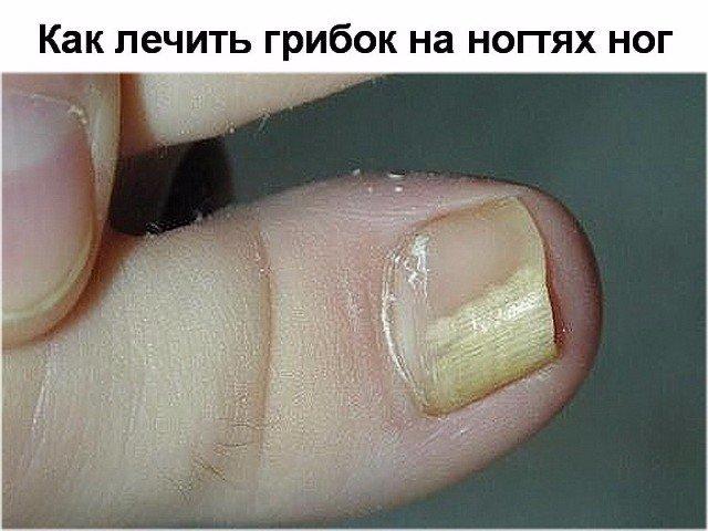 Как лечить грибок ногтей на ногах при беременности