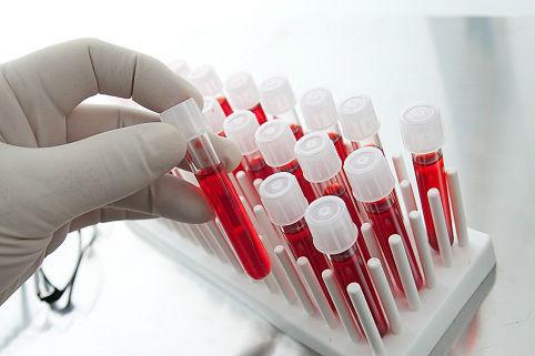 Почему кровь на анализ берут из безымянного пальца