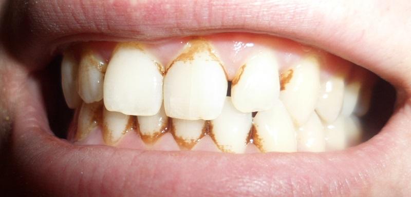 Средство, которое борется с зубным камнем лучше ультразвука!