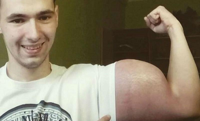 Тело, за которое можно умереть: россиянин делает инъекции опасным препаратом, чтобы увеличить объем бицепсов