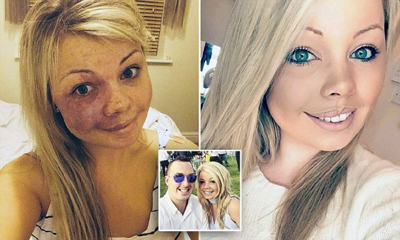 Девушка с родимым пятном на лице стала признанным экспертом по макияжу