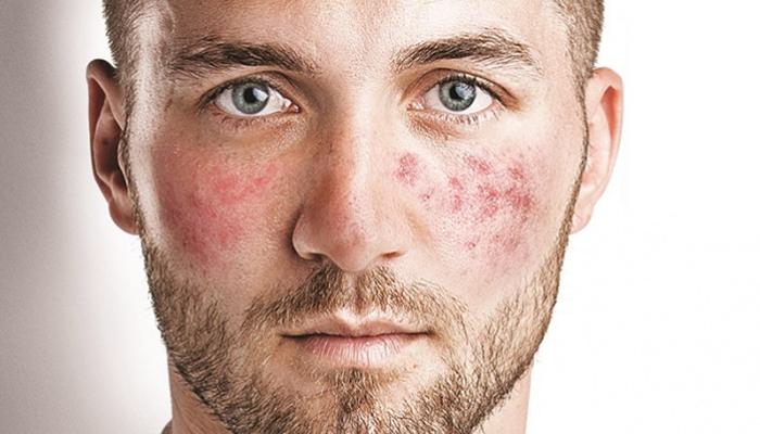 Купероз на лице: как предотвратить и возможно ли избавиться