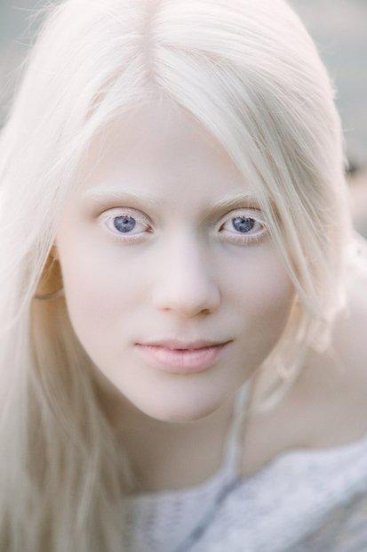 """Девушка-альбинос: """"Родители с детства говорили мне, что я уникальна"""""""