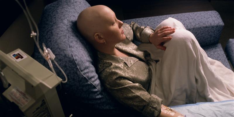 Самые распространенные виды рака в России и мире болезнь, люди, медицина, рак, статистика