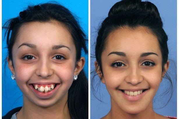 Хирург поправил ей форму челюсти: просто невероятное преображение зубы, красота, пластика, преображение, хирургия, челюсть