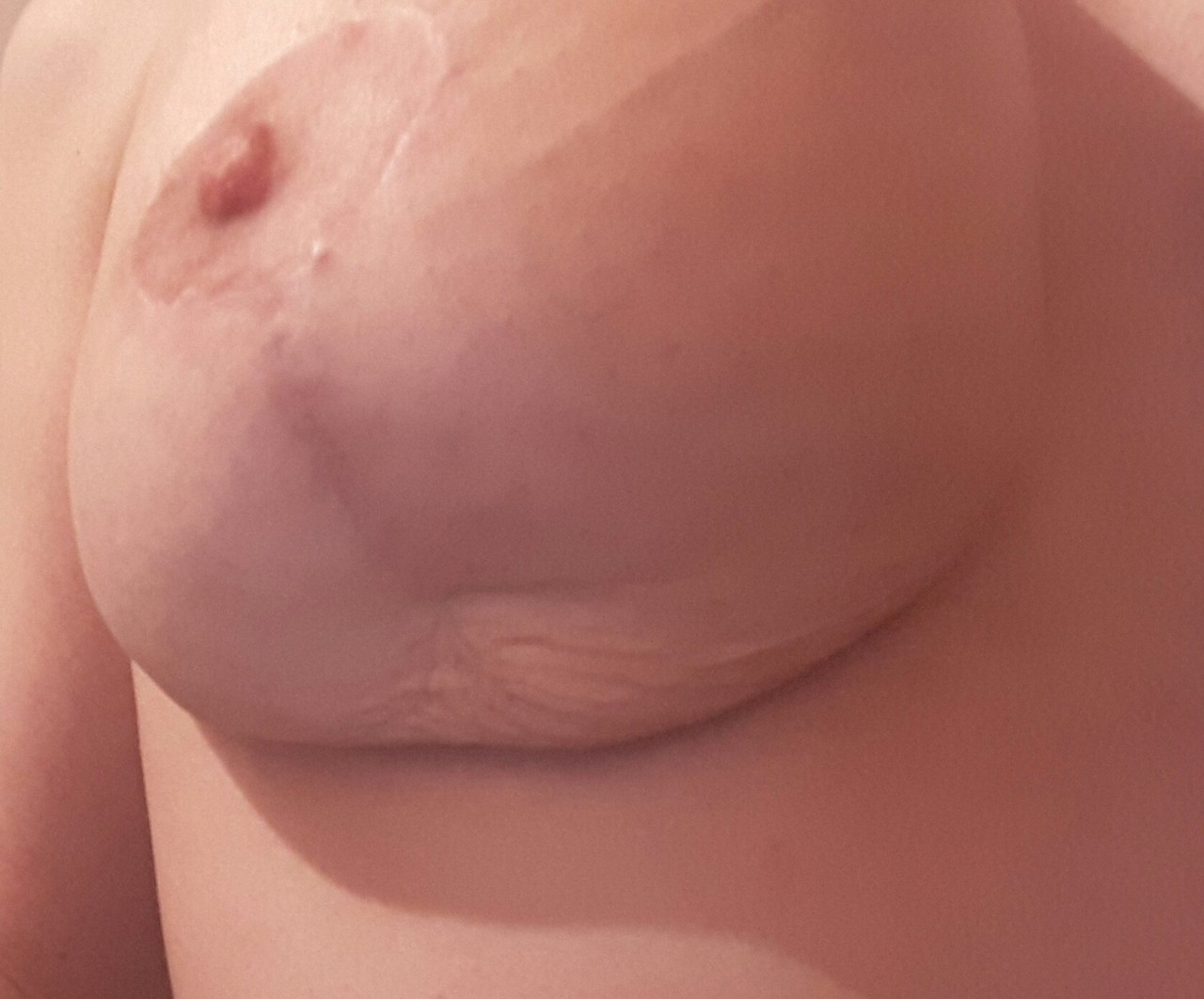 Пластику груди минусы