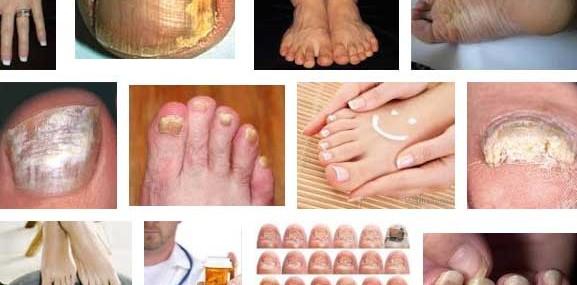 Грибок ногтей на ногах — причины, симптомы, профилактика, лечение, что важно знать