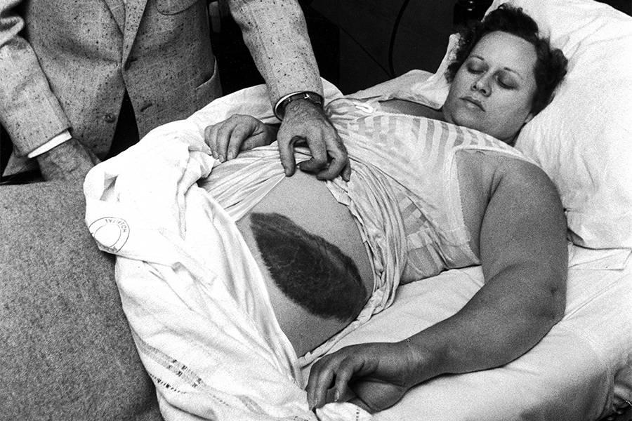 Энн Ходжес — единственный известный человек, пострадавший от прямого попадания метеорита