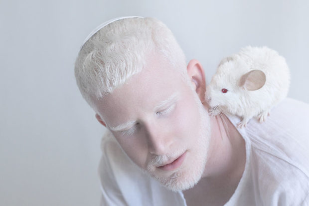 albinos_7