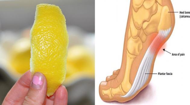 Лимонная цедра от хронической боли в суставах!