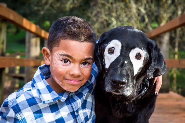 Мальчика и собаку объединила болезнь