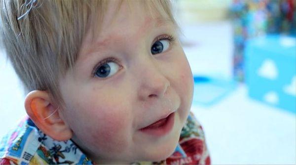 Мальчику, который родился без мозга, исполнилось 5 лет.