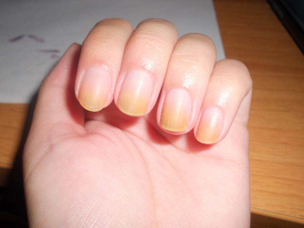 Картинки по запроÑу 10 Ñимптомов ногтей и то, что они означают Ð´Ð»Ñ Ð²Ð°ÑˆÐµÐ³Ð¾ здоровьÑ
