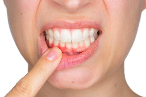 Гингивит причины болезни профилактика