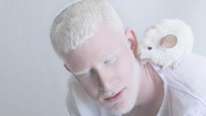 Завораживающая красота альбиносов