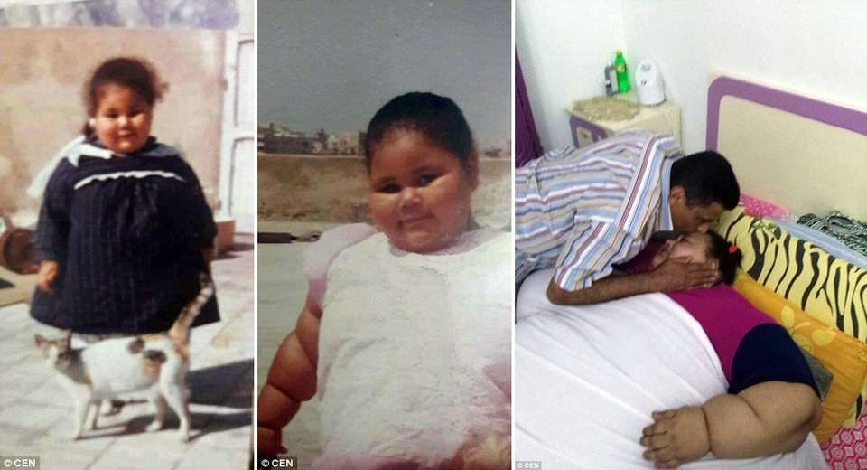 В больнице ОАЭ умерла самая полная женщина в мире