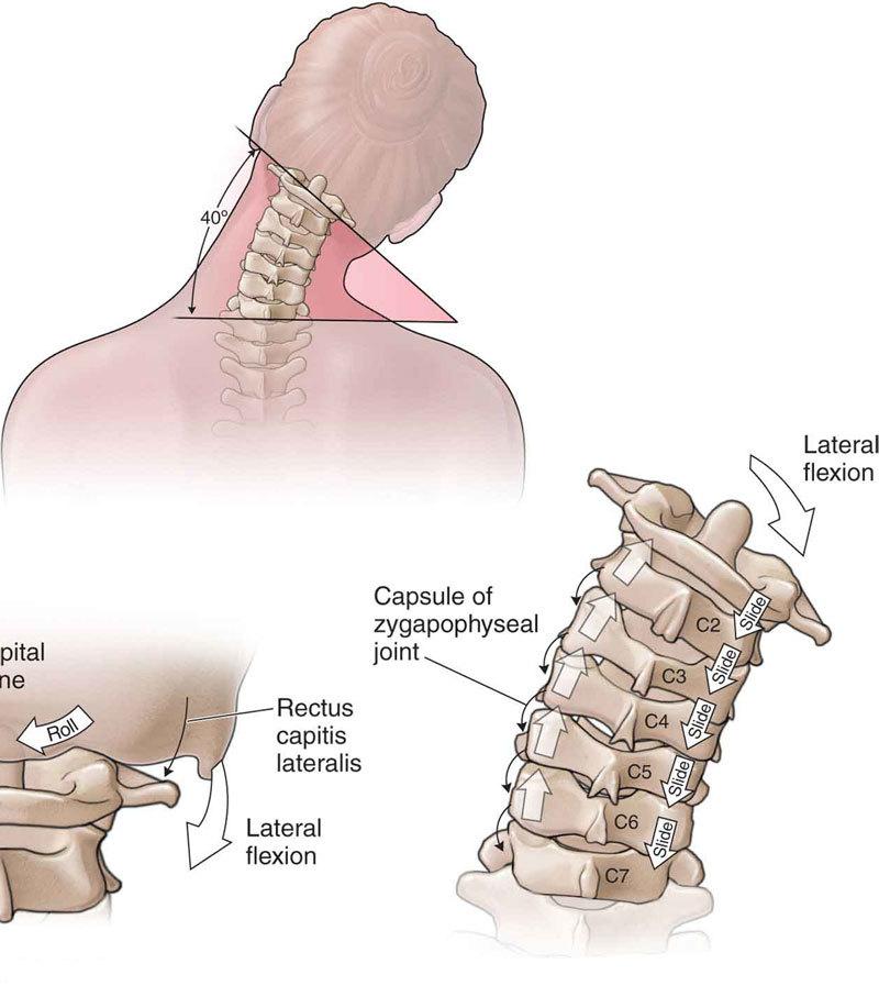 Упражнения, которые заставят вас забыть о боли в области шеи
