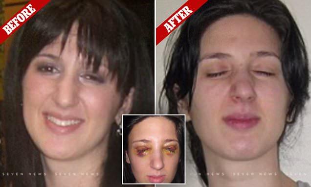 Из-за загадочной болезни девушка не может открыть глаза по три дня кряду
