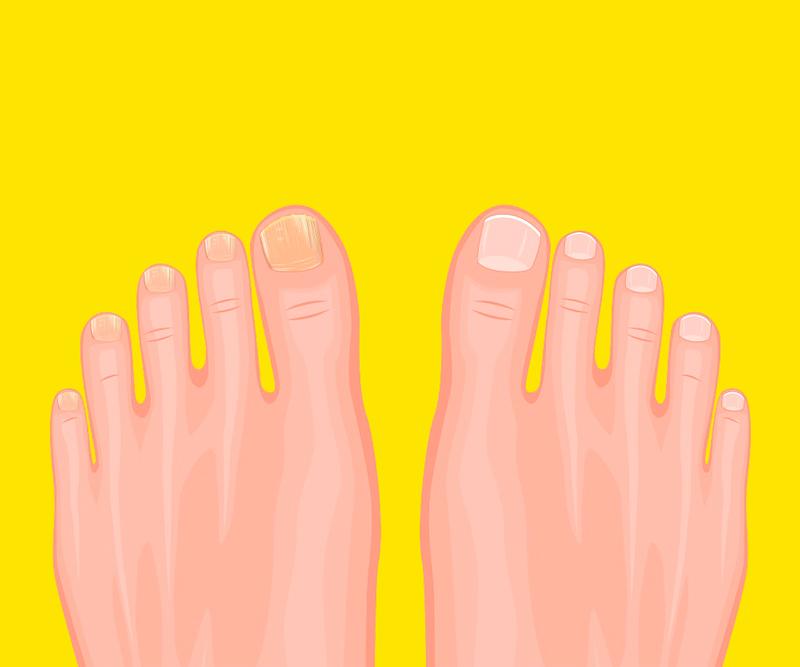 3 простейших домашних рецепта от грибка на ногтях