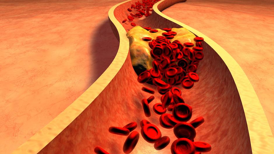 Найдено объяснение человеческой склонности к инфарктам и инсультам