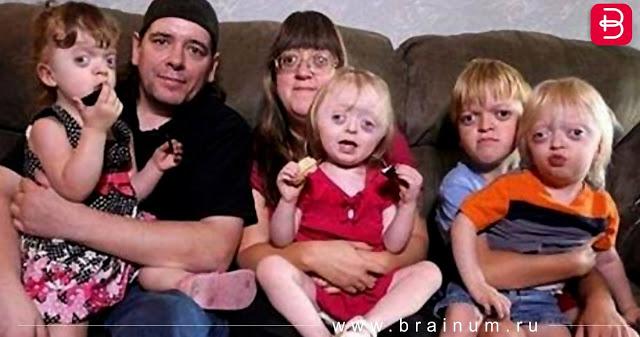 Интернет-пользователь высмеял фотографию матери с редким генетическим отклонением и ее детей