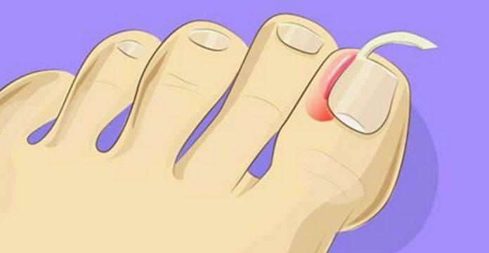 Врастание ногтей – серьезная…