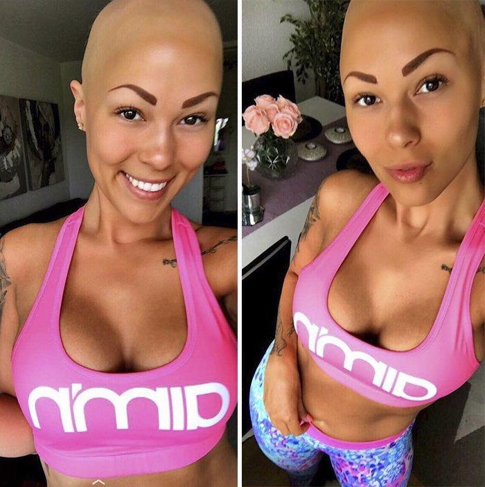 Теперь 26-летняя шведка помогает тем, кто столкнулся с проблемой выпадения волос алопеция, волосы, девушка, история, модель, секрет, фото