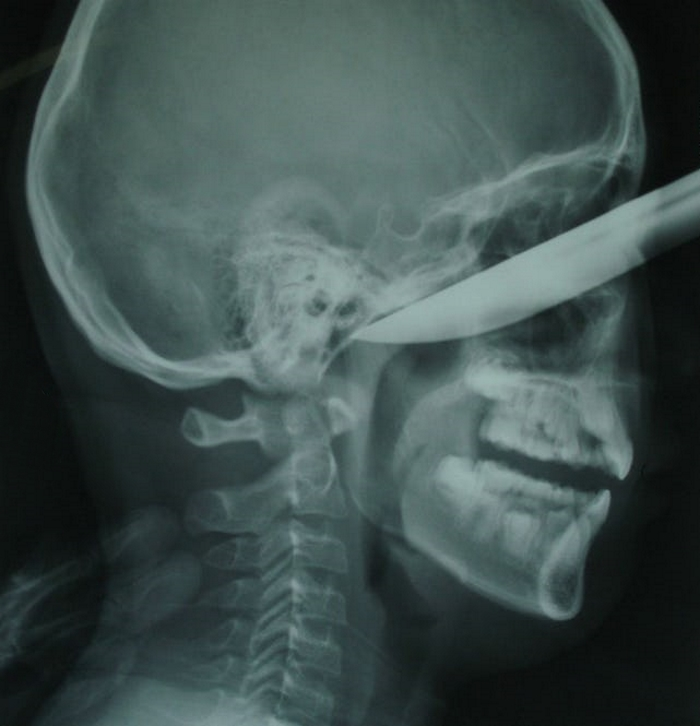 15 удивительных рентгеновских снимков, в подлинность которых сложно поверить…