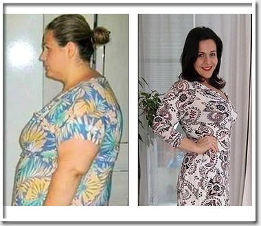 Женщина сбросила 60 кг лишне…