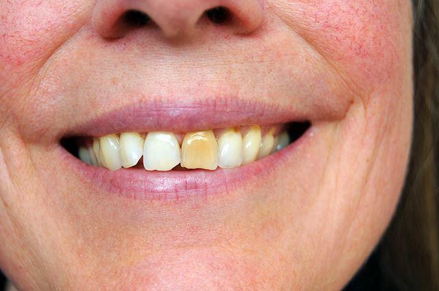 Самые лучшие способы отбеливания зубов в домашних условиях