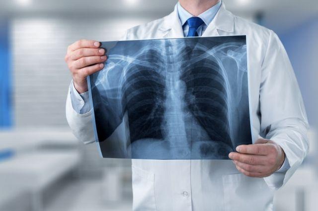 Чем грозит человеку кардиомегалия