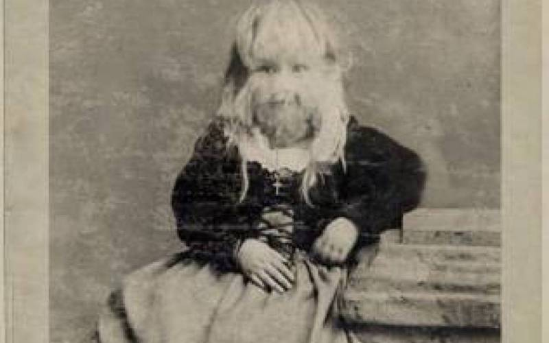 Алиса Доэрти «Оборотень из Миннесоты» Алиса Элизабет Доэрти родилась в 1887 году в Миннесоте, США в семье, до этого имеющей детей с нормальной внешностью. При рождении лицо Алисы уже было покрыто волосами в 5 см длиной. Ее родители быстро оправились от шока и рано начали показывать свою дочь за деньги. Ее сдавали в аренду владельцам магазинов, которые выставляли девочку на витрине, чтобы привлечь покупателей. Самой Алисе, получившей, кстати, прозвище «Американский оборотень», очень не нравилась жизнь магазинной зазывалы, и поэтому в возрасте 18 лет она ушла на пенсию, заработав заблаговременно кругленькую сумму денег.