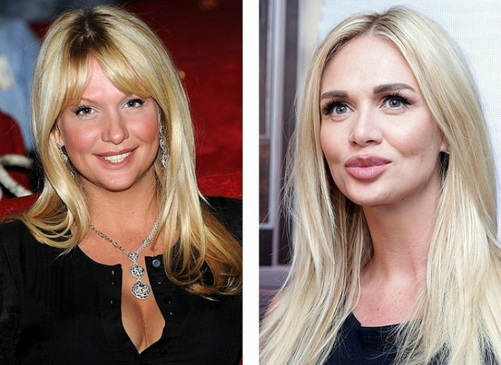 Известные российские красавицы до и после пластики