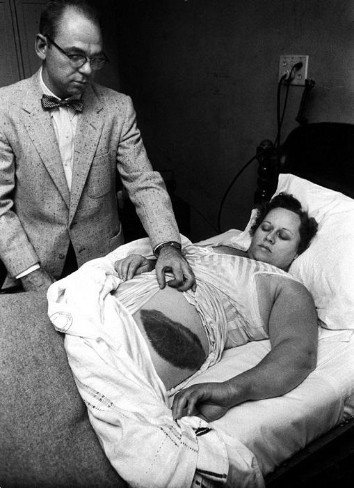 Мудди Якобз показывает гигантский ожог, который получила его пациентка Энн Ходжес вследствие падения метеорита 30 ноября 1954 года.