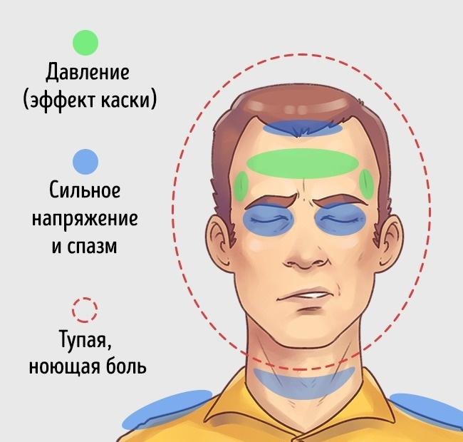 5 типов головной боли и способы быстро от них избавиться