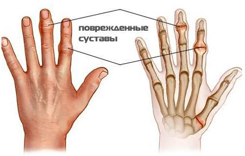 Как вылечить суставы пальцев рук: Уникальный метод — массаж гречкой