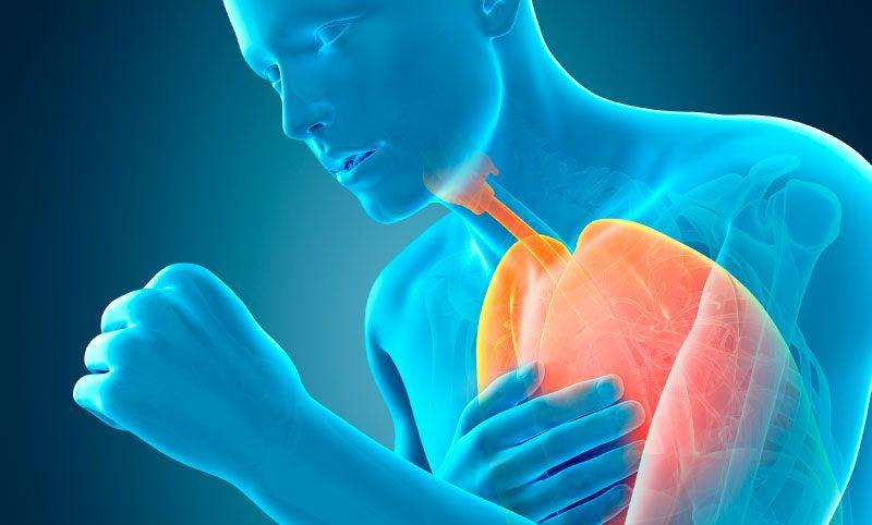 """""""Тихая"""" пневмония: какими признаками она сопровождается?"""