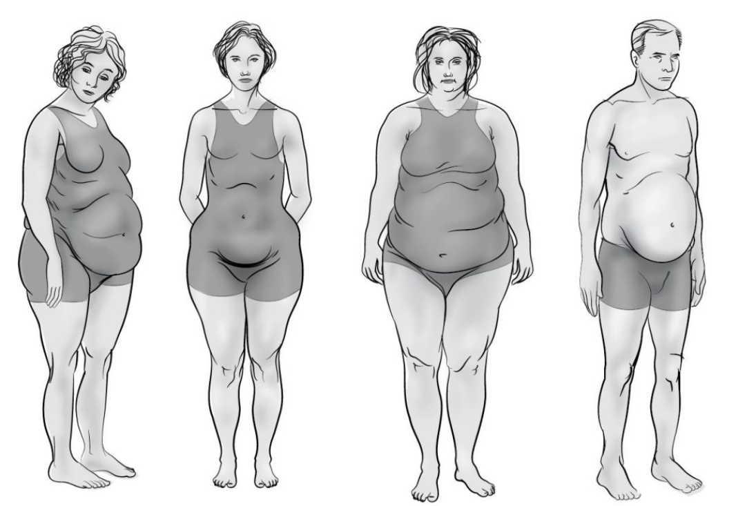 Лечение ожирения яблочным уксусом
