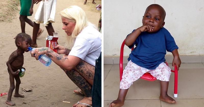 Как стал выглядеть спасенный мальчик, едва не умерший от недоедания